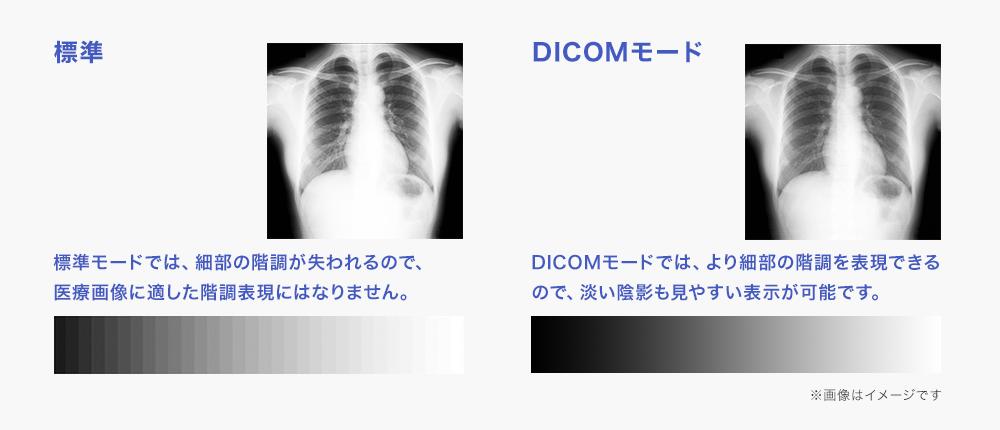 DICOMモードなら、より細部の階調も表現される!